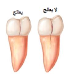 الأسنان المتصدعة