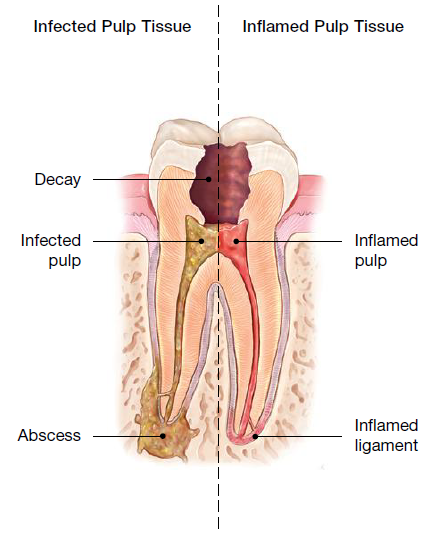 What are the Most Commonly Prescribed Tooth Infection